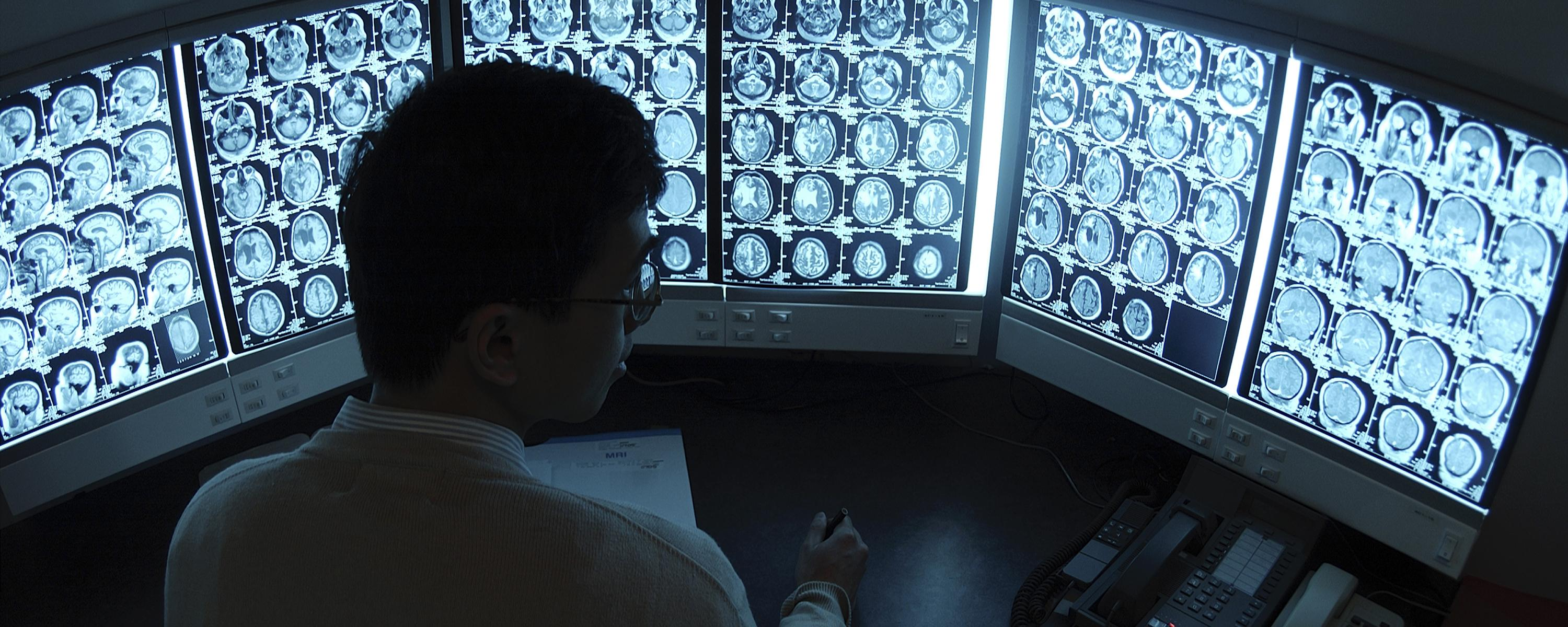 Illustrative photo of person looking at scansHealth Information Management
