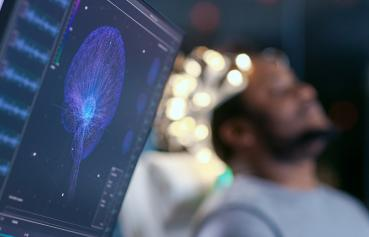 image of a man getting a brain scan